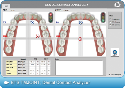 BTS-TMJOINT, Dental Contact Analyzer